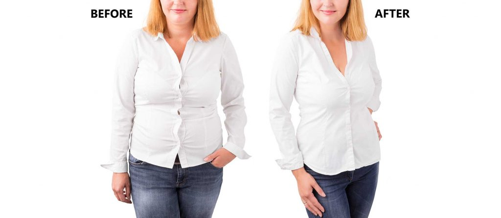 Weight Lose Therapy Before and After
